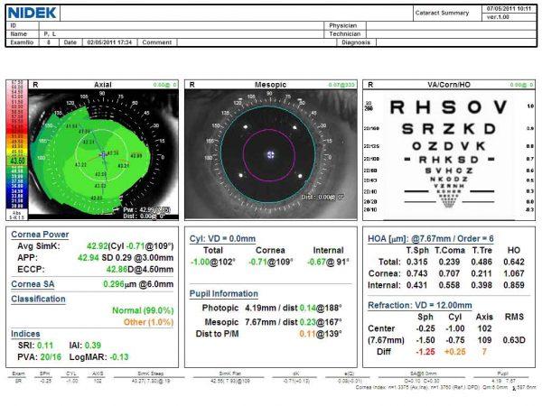 Cataract Summary
