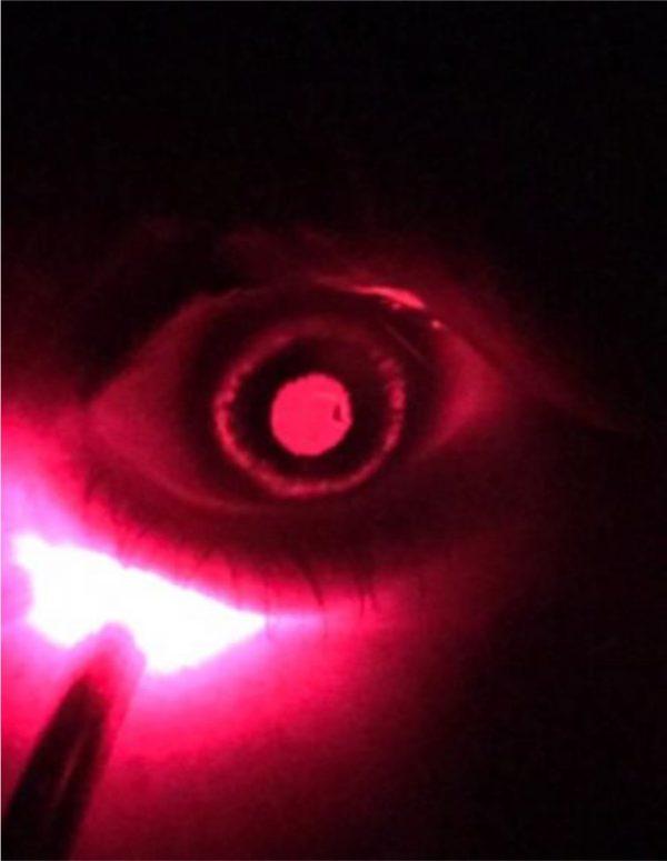 Midperipheral-iris-transillumination-defects-of-the-left-eye-seen-by-direct-illumination_W840