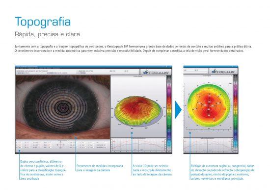 Keratograph 5M - Topógrafo_page-0004